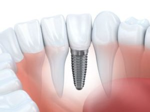 dental implants in san antonio
