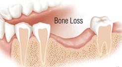 Dental Bone Grafting Pic