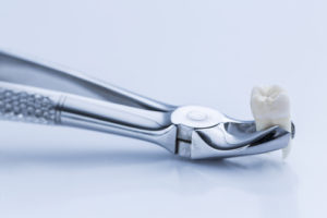Tooth Extraction Pic