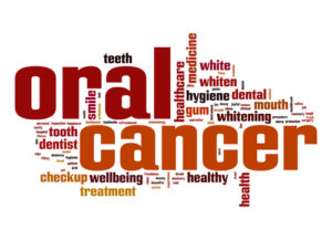 Oral Cancer Screening Pic