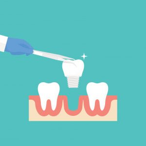 tooth-replacment-options