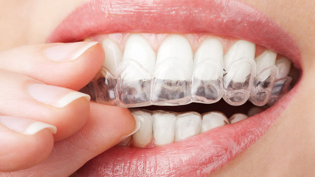 whitening-trays