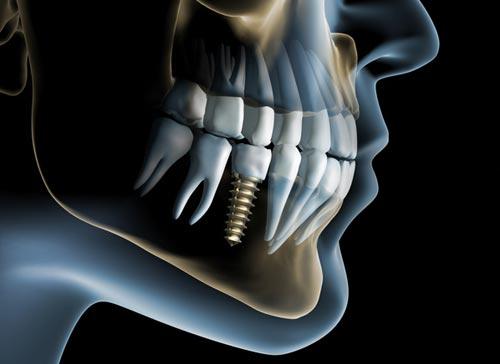 dental-implant-dentist