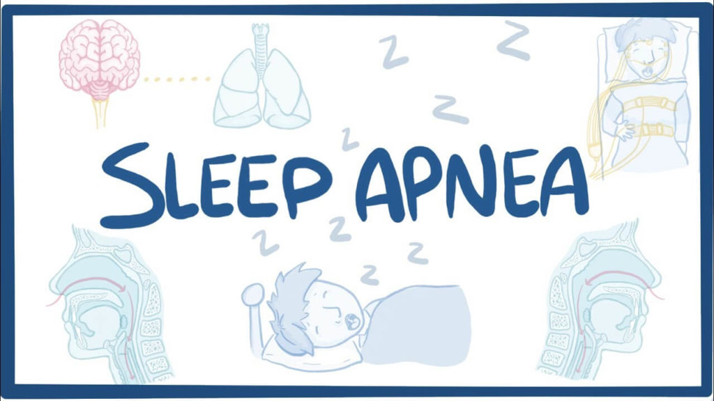 sleep-apnea-causes