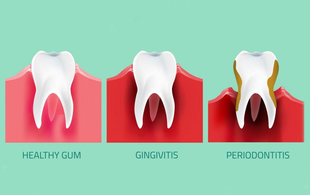 oral-disease